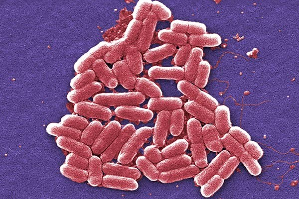 CDC: Most <i>E. coli</i> Outbreaks Caused By Food