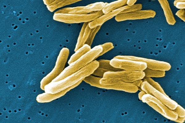 Report Highlights Danger of Drug-Resistant Tuberculosis