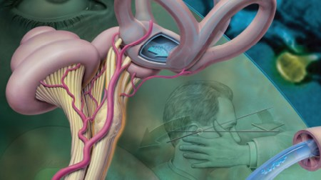 Severe Dizziness, Nausea, and Vomiting Prompt an ED Visit