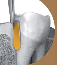 PerioChip Now Available for Periodontal Disease