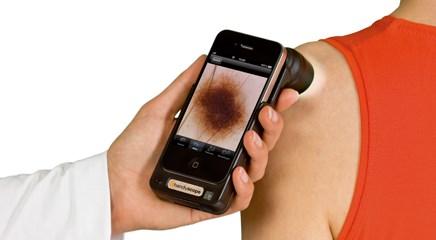 Smartphone Melanoma Screening Apps