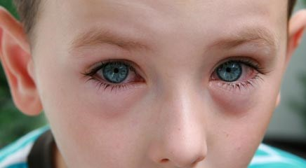 Symptoms of Spring: Treating Rhinitis and Allergic Conjunctivitis