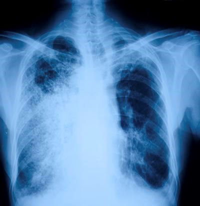 Outpatient Proton Pump Inhibitor Therapy Increases Community Acquired Pneumonia Risk