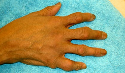 Gout Management 