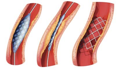 Two studies show similar short- and long-term outcomes for stenting versus surgery
