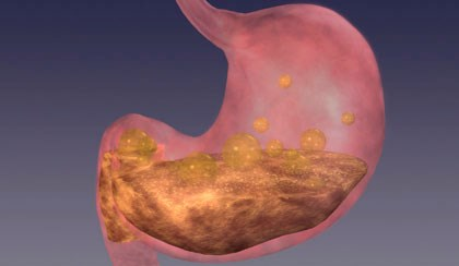 New Possible Target Against Gastric Injury Studied