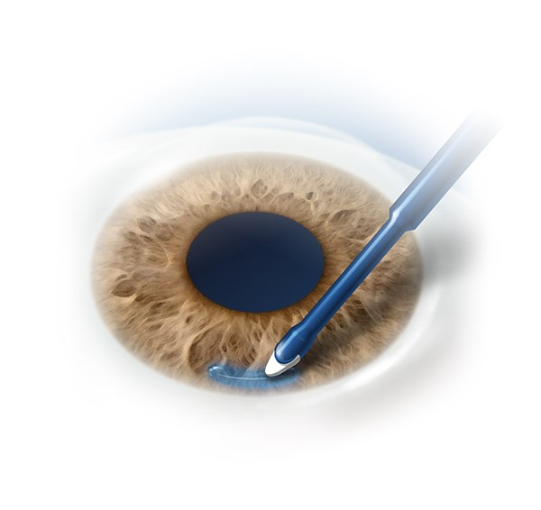 ReSure Sealant by Ocular Therapeutix