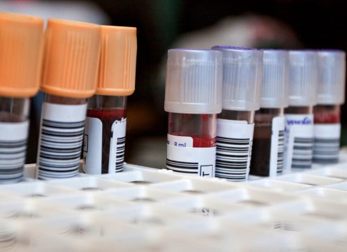 Blood Test Predicts Alzheimer's, Dementia