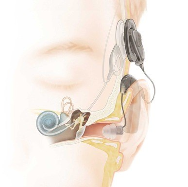 First Implantable Device for High-Frequency Hearing Loss