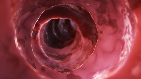 Can Metformin Prevent Colorectal Cancer in Diabetic Patients?