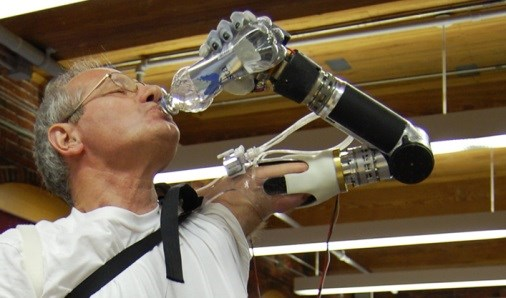 First-of-Kind Prosthetic Arm