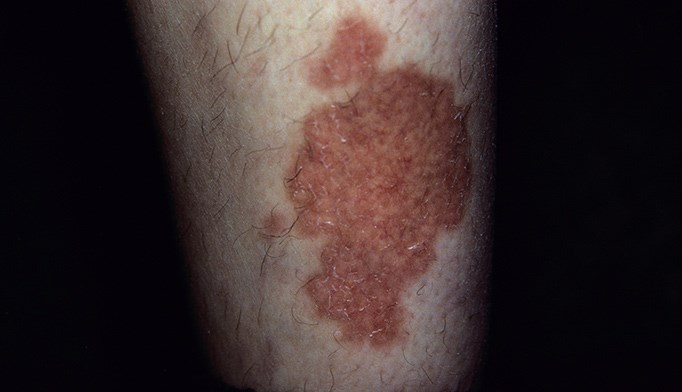 Spreading Rash on Shin: What Does it Signify?