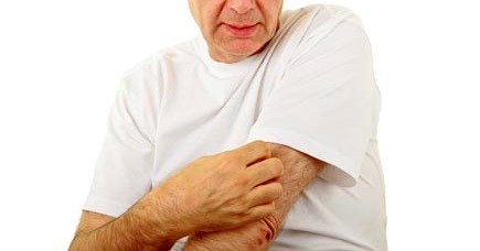 Rash and Fever in Adults Could Indicate Rare But Deadly Disease