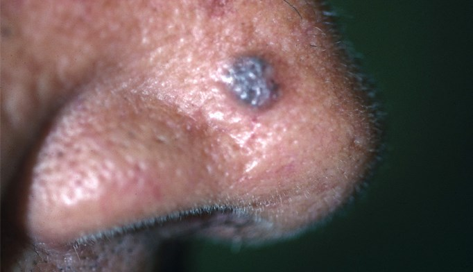 What Are the Two Most Common Skin Cancers?
