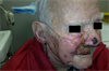 Clinical Challenge: Painful Eruptions on Face