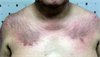 Clinical Challenge: Itchy Rash on Eyelids, Chest, Back, and Hands