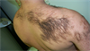 Clinical Challenge: Coarse Hairs on the Back, Shoulder