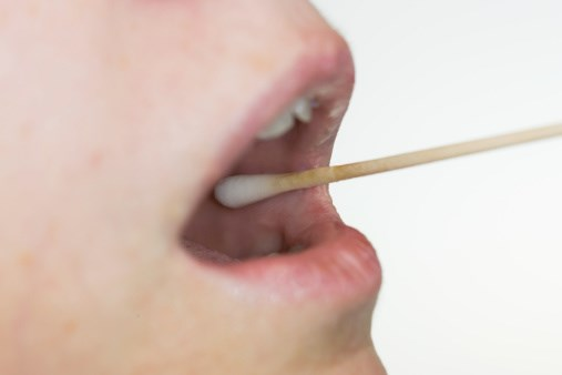 Testing Saliva Could Help Diagnose Autism