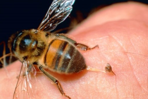 The Buzz on Bee-Venom Therapy