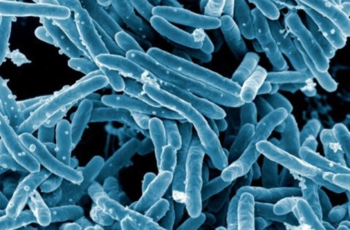 Tuberculosis Cases Have Declined in the U.S.
