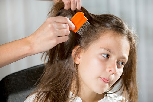 Guidelines Updated for Lice Infestation Among Children