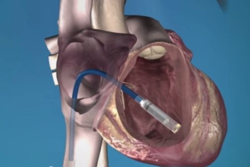 'World's Smallest Pacemaker' Appears Promising
