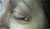 Clinical Challenge: Cystic Papule Near Left Eye