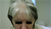 Clinical Challenge: White Forelock of the Frontal Scalp
