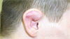 Clinical Challenge: Deformed Ear