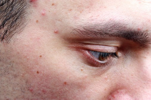 New Topical Gel Approved for Acne Vulgaris