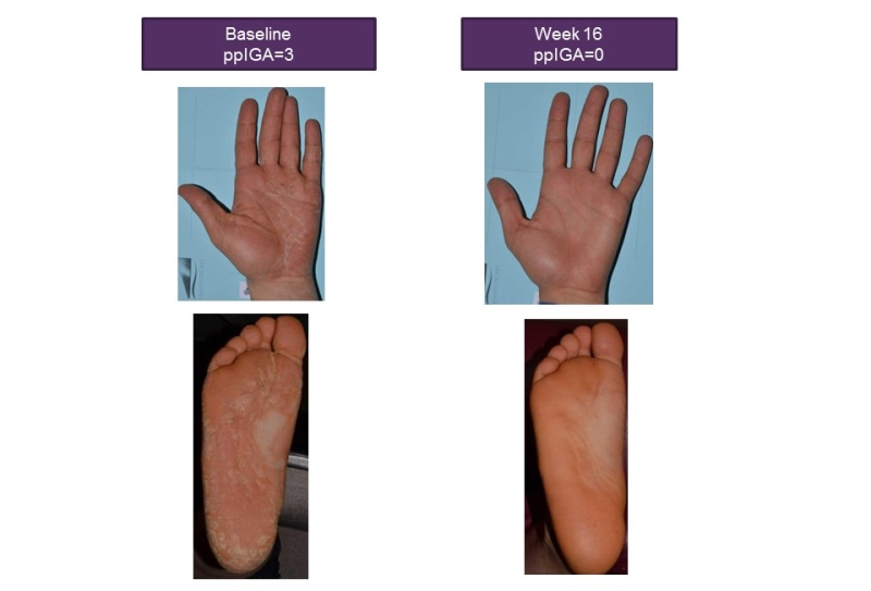 Compared to Ustekinumab In The Treatment of Moderate to Severe Plaque Psoriasis In The Czech Republic 2