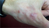 Clinical Challenge: Bright Plaques, Papules on the Thumb