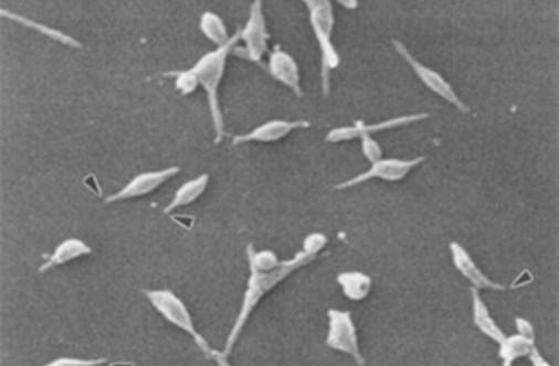 Macrolide-Resistant Bug ID'ed Across the U.S.