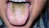 Clinical Challenge: Black, Velvety Coating of the Tongue
