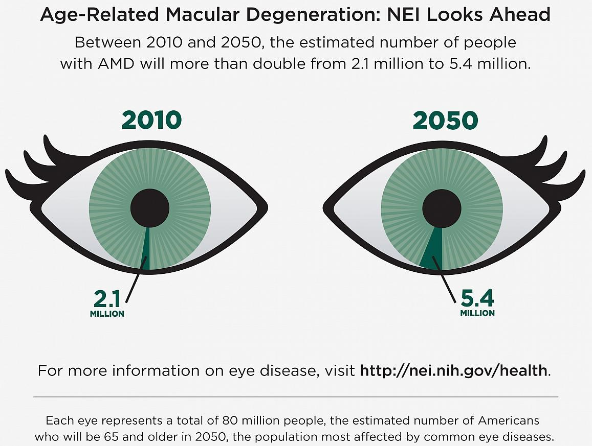Study ID's More Genetic Factors Linked to AMD