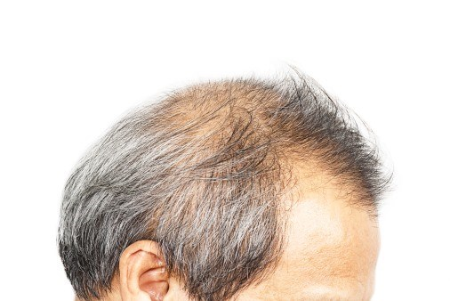 Link for perifollicular scaling and presence of any type of dystrophic hair with positive culture
