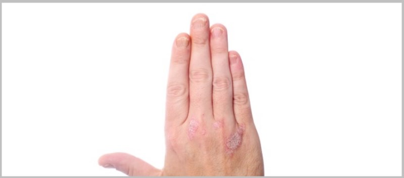 Incidence, Risk Factors for Psoriatic Arthritis in Psoriasis Patients