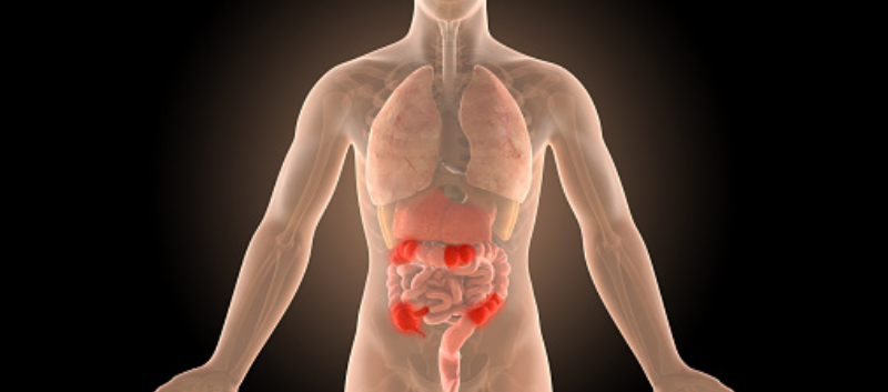 Filgotinib Achieves Clinical Remission in Crohn's Disease Study