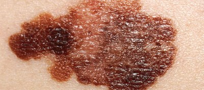Researchers say skin cancer in these patients is likely due to more sun exposure
