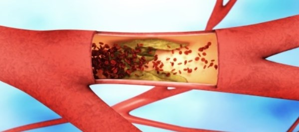 Women on aromatase inhibitors exhibit less elasticity in their blood vessels