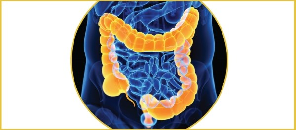 Model May Predict Colectomy Likelihood at First Colitis Episode