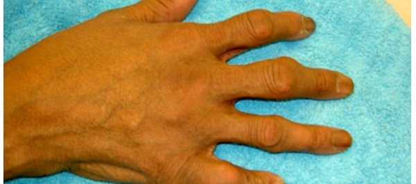 Gene Variant Linked to Severe Cutaneous Reactions with Gout Treatment