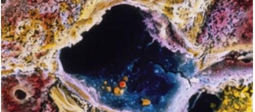 Glecaprevir/Pibrentasvir Achieves High SVR12 Rates in Non-cirrhotic HCV GT 4-6
