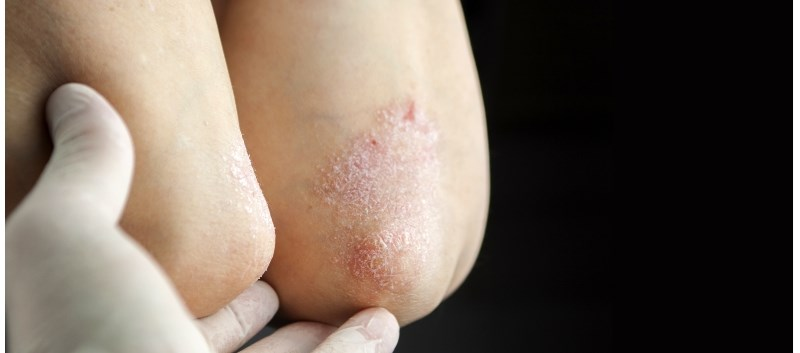 First Systemic Tx to Treat Peds With Plaque Psoriasis