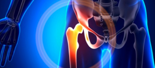 Osteoporosis Med Efficacy Assessed in Nonmetastatic Prostate CA