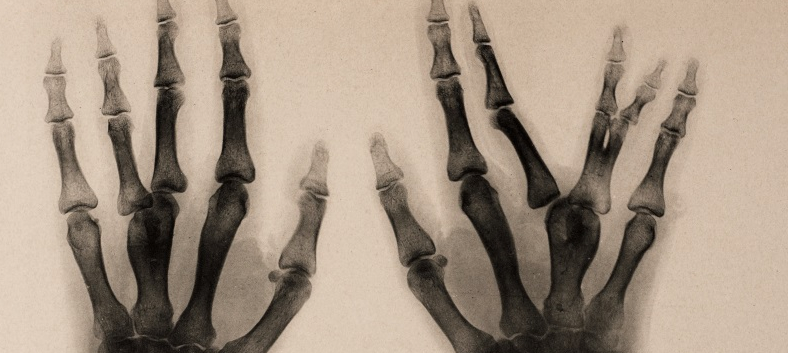 burns archive x-ray fused meta