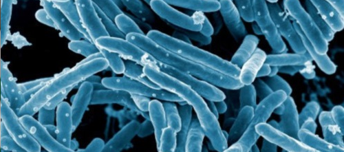 Does Fluoroquinolone Use Delay Diagnosis of Active Tuberculosis?