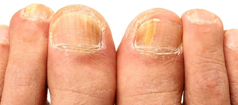 Laser Plus Topical Antifungal Effective for Onychomycosis