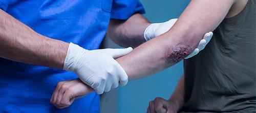 Elbow Injury