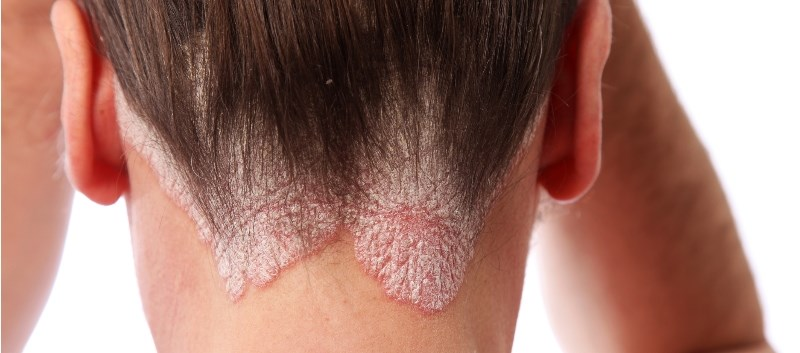 Scalp Psoriasis: Investigating the Efficacy of Current Treatments